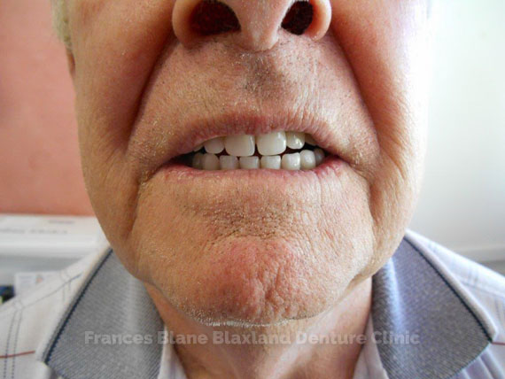 the full dentures in the patients mouth
