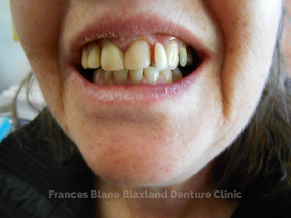 ill fitting partial denture which needs replacing