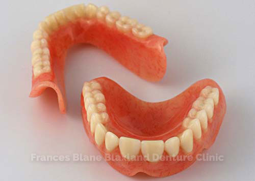 immediate-dentures