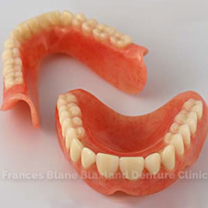 immediate false teeth